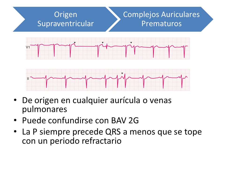 De origen en cualquier aurícula o venas pulmonares