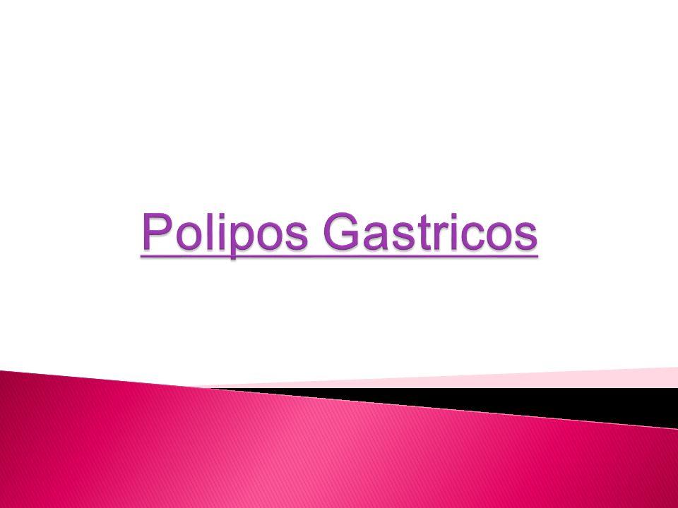 Polipos Gastricos