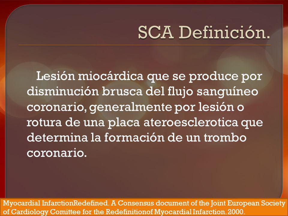 SCA Definición.