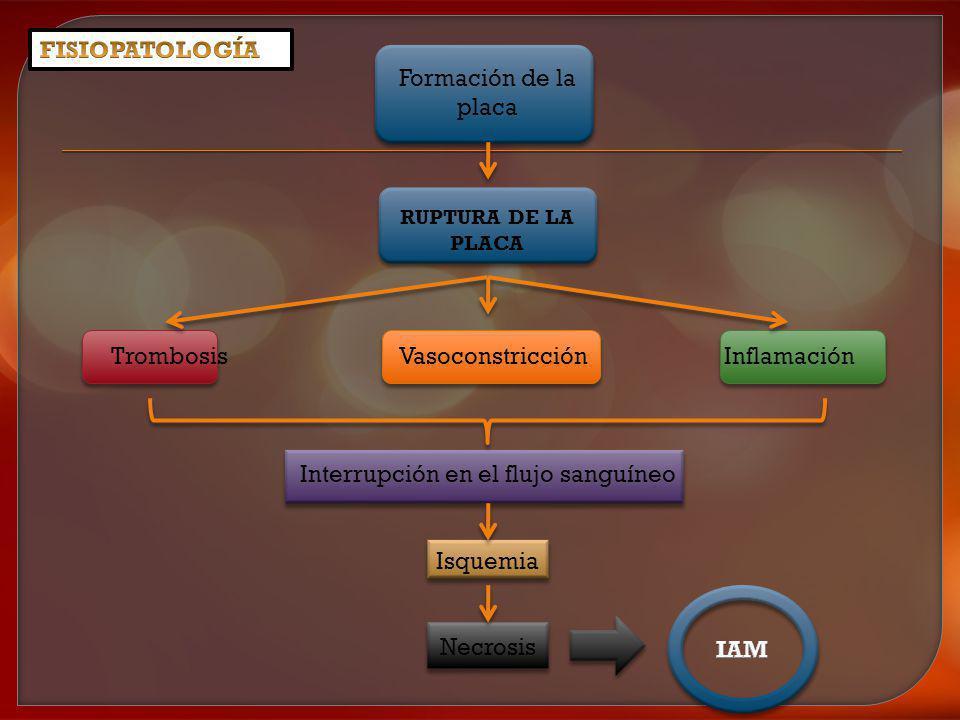 Trombosis Vasoconstricción Inflamación