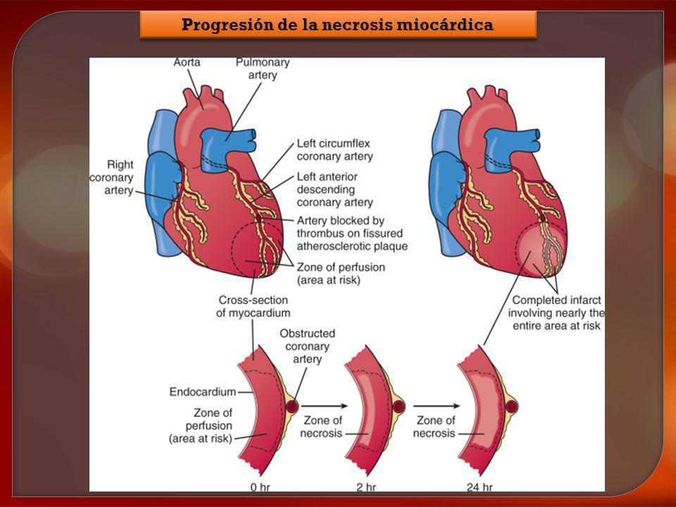Progresión de la necrosis miocárdica