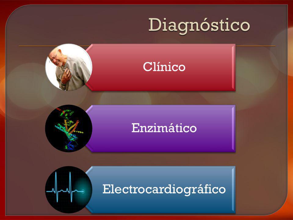 Electrocardiográfico