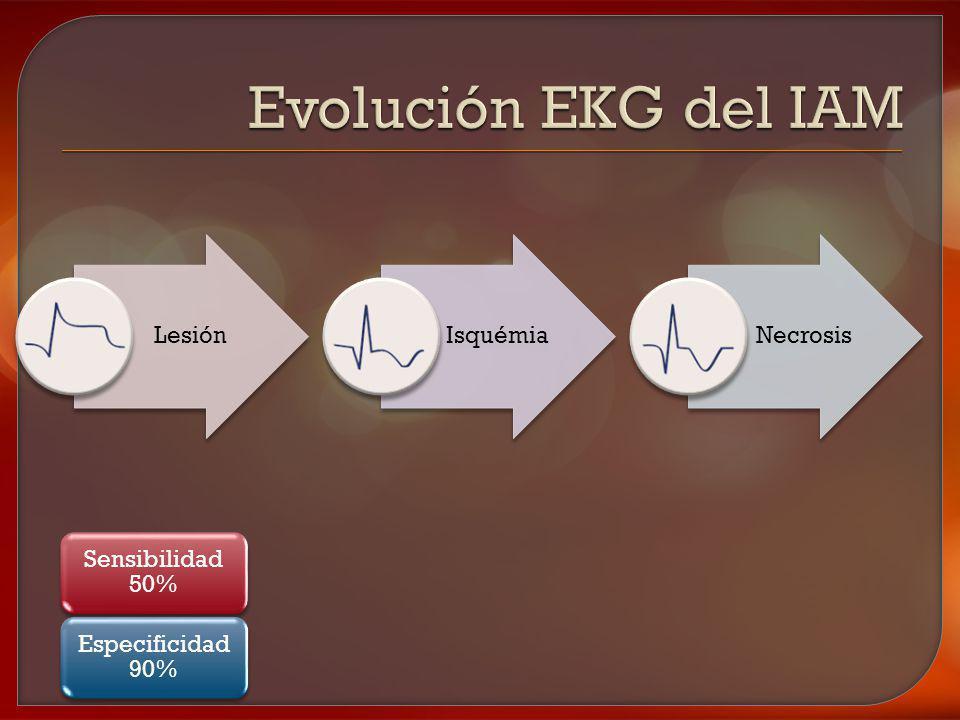 Evolución EKG del IAM Lesión Isquémia Necrosis Sensibilidad 50%