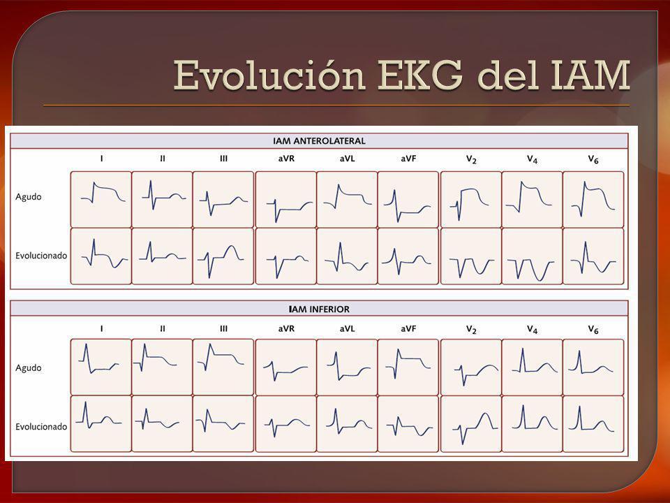 Evolución EKG del IAM