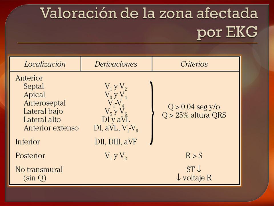 Valoración de la zona afectada por EKG