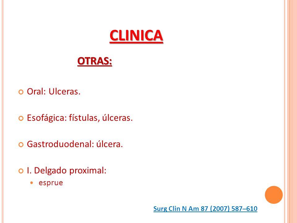 CLINICA OTRAS: Oral: Ulceras. Esofágica: fístulas, úlceras.