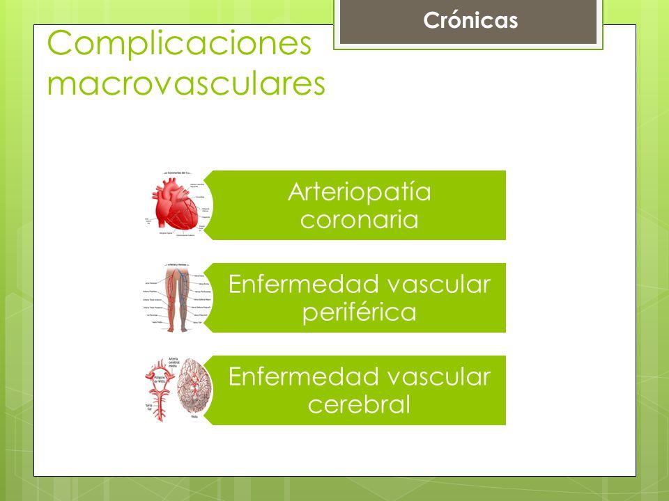 Complicaciones macrovasculares