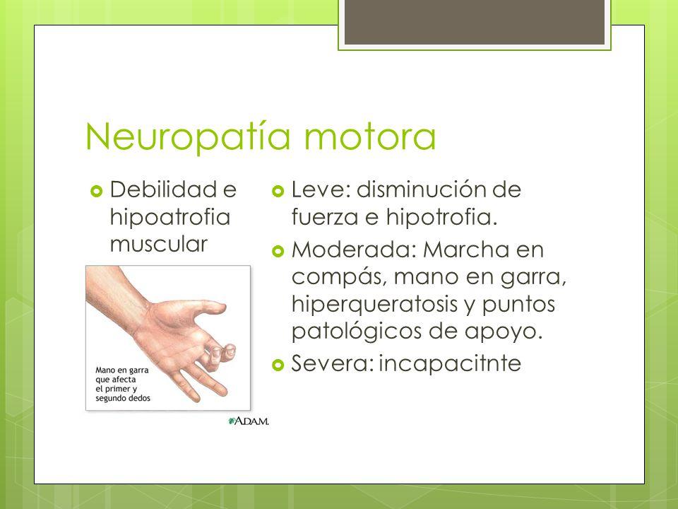 Neuropatía motora Debilidad e hipoatrofia muscular