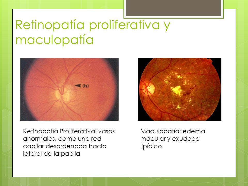 Retinopatía proliferativa y maculopatía