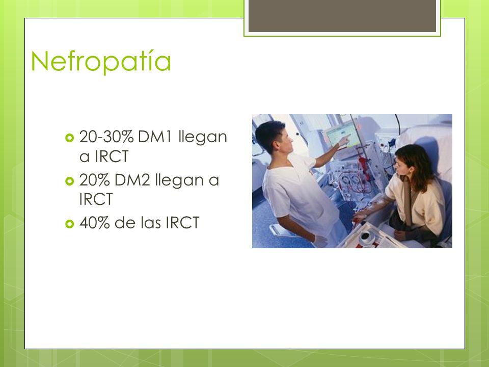Nefropatía 20-30% DM1 llegan a IRCT 20% DM2 llegan a IRCT