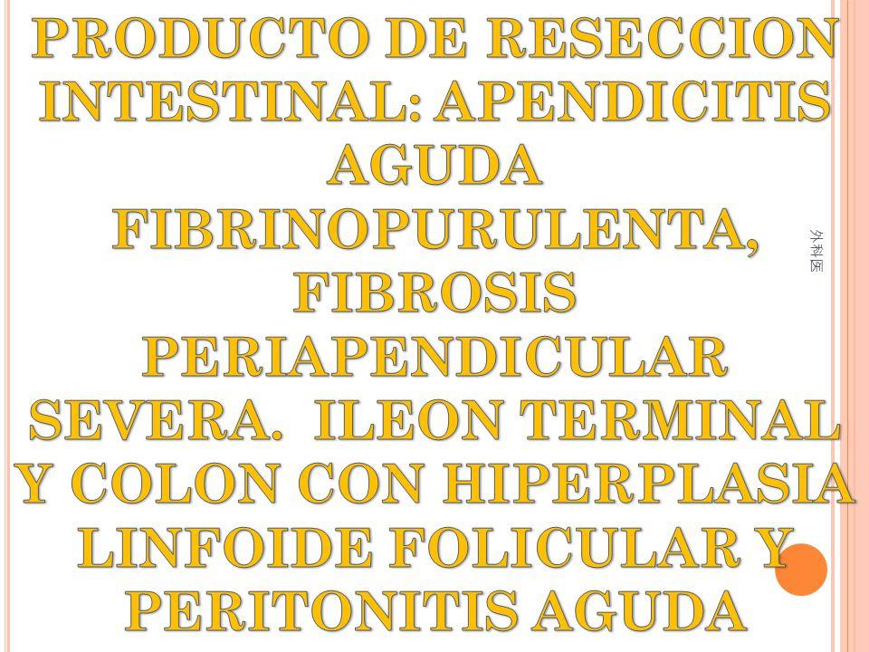PRODUCTO DE RESECCION INTESTINAL: APENDICITIS AGUDA FIBRINOPURULENTA, FIBROSIS PERIAPENDICULAR SEVERA. ILEON TERMINAL Y COLON CON HIPERPLASIA LINFOIDE FOLICULAR Y PERITONITIS AGUDA
