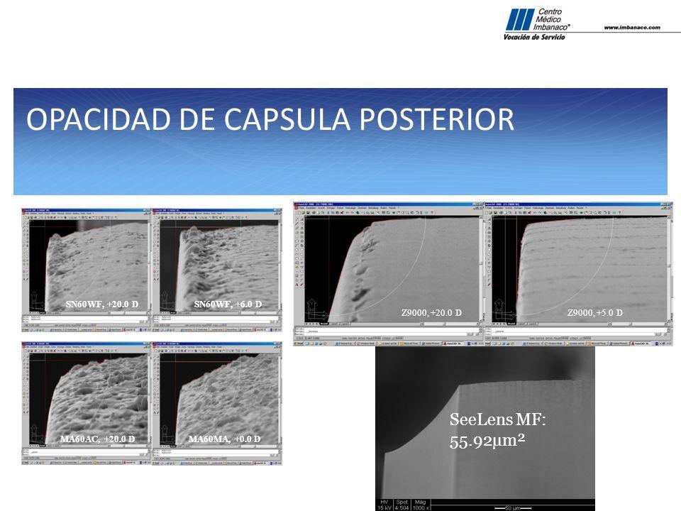 OPACIDAD DE CAPSULA POSTERIOR