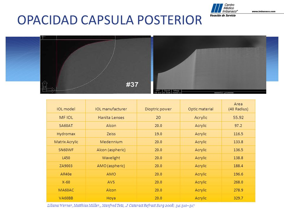 OPACIDAD CAPSULA POSTERIOR
