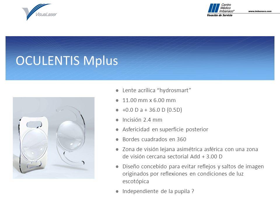 OCULENTIS Mplus Lente acrílica hydrosmart 11.00 mm x 6.00 mm