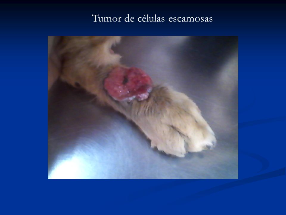 Tumor de células escamosas