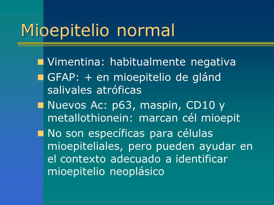 Mioepitelio normal Vimentina: habitualmente negativa