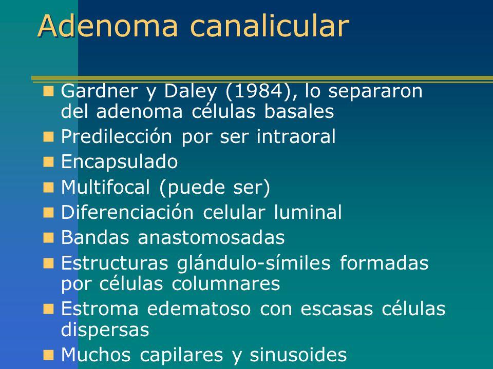 Adenoma canalicular Gardner y Daley (1984), lo separaron del adenoma células basales. Predilección por ser intraoral.