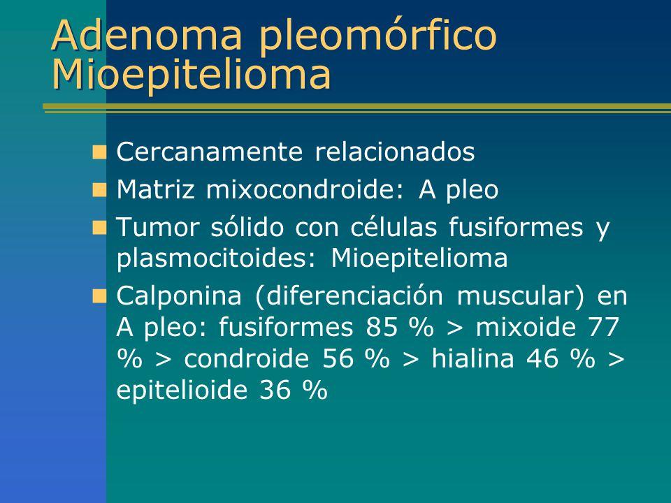 Adenoma pleomórfico Mioepitelioma