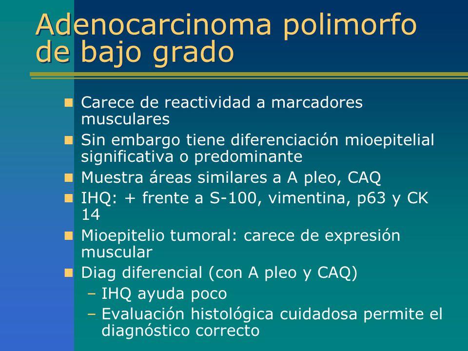 Adenocarcinoma polimorfo de bajo grado