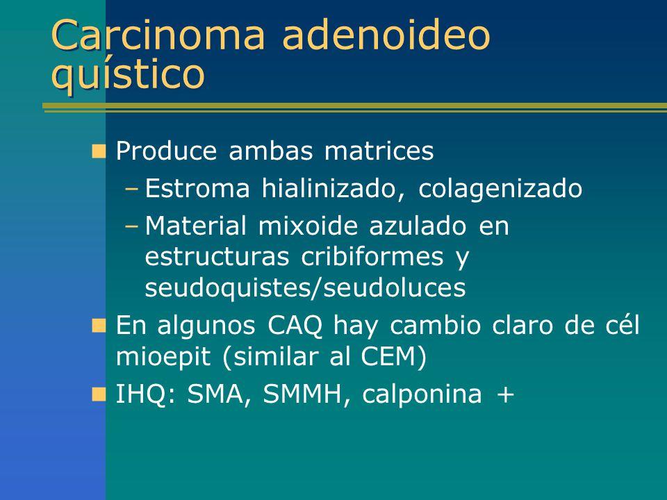 Carcinoma adenoideo quístico