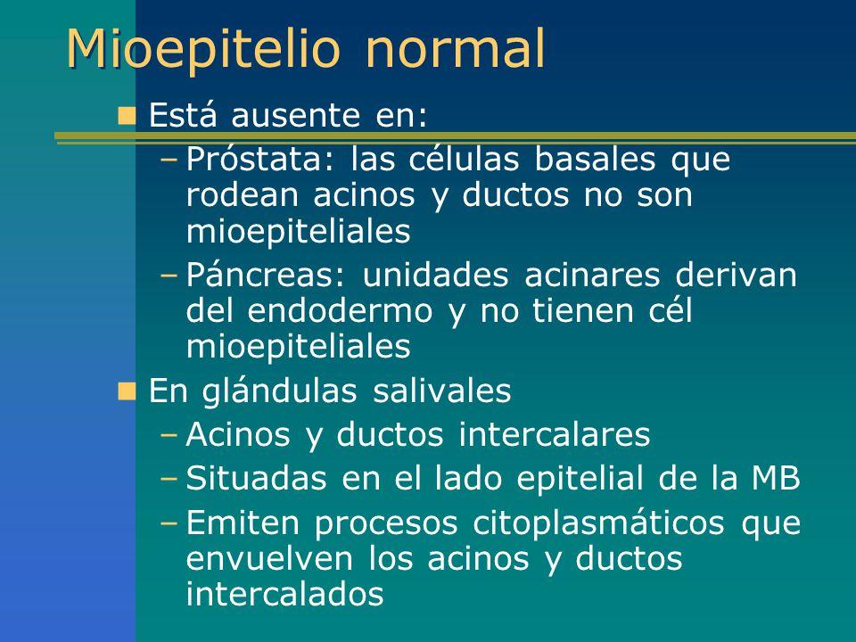 Mioepitelio normal Está ausente en: