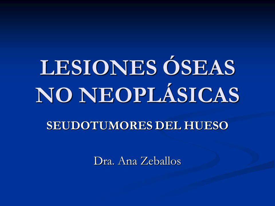 LESIONES ÓSEAS NO NEOPLÁSICAS