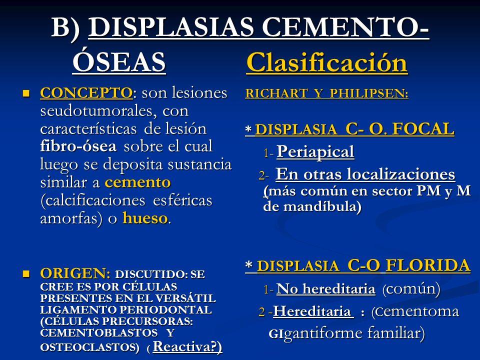 B) DISPLASIAS CEMENTO-ÓSEAS Clasificación