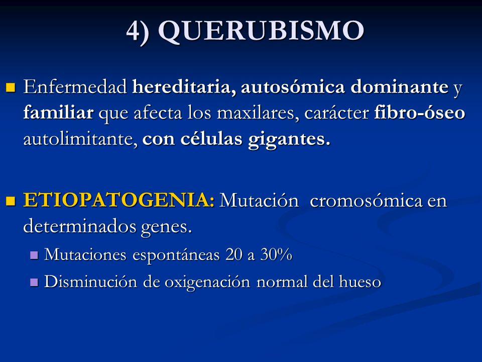 4) QUERUBISMO