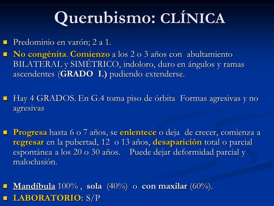 Querubismo: CLÍNICA Predominio en varón; 2 a 1.