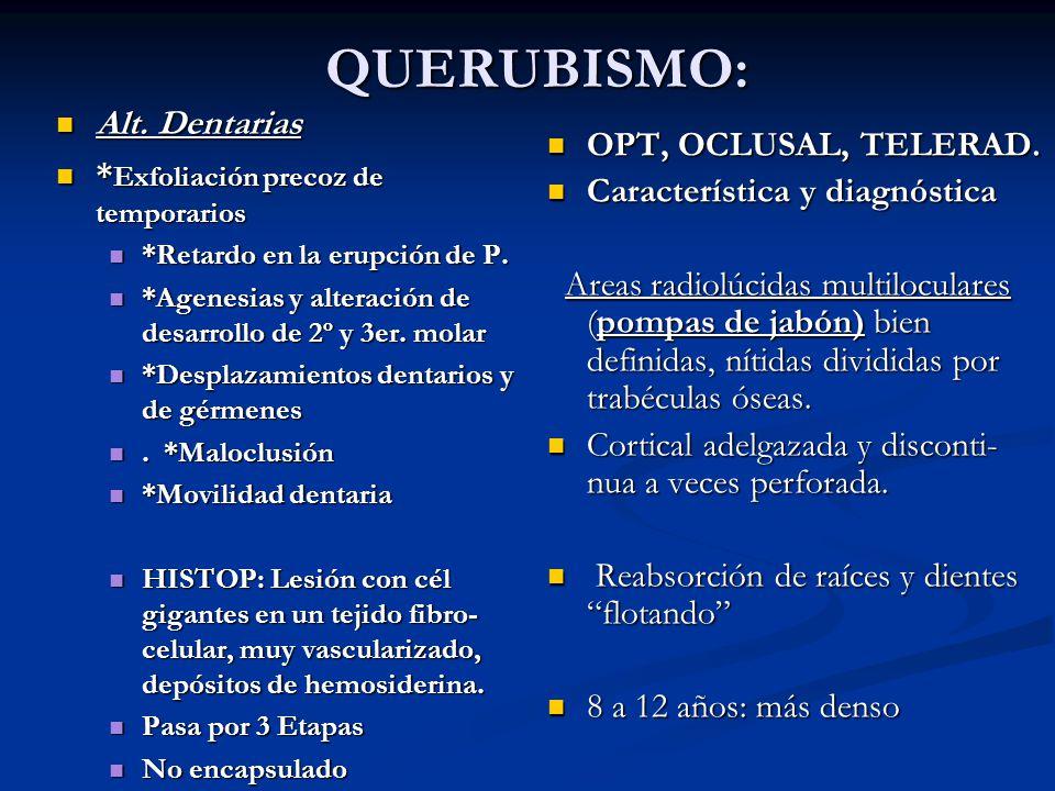 QUERUBISMO: Alt. Dentarias *Exfoliación precoz de temporarios