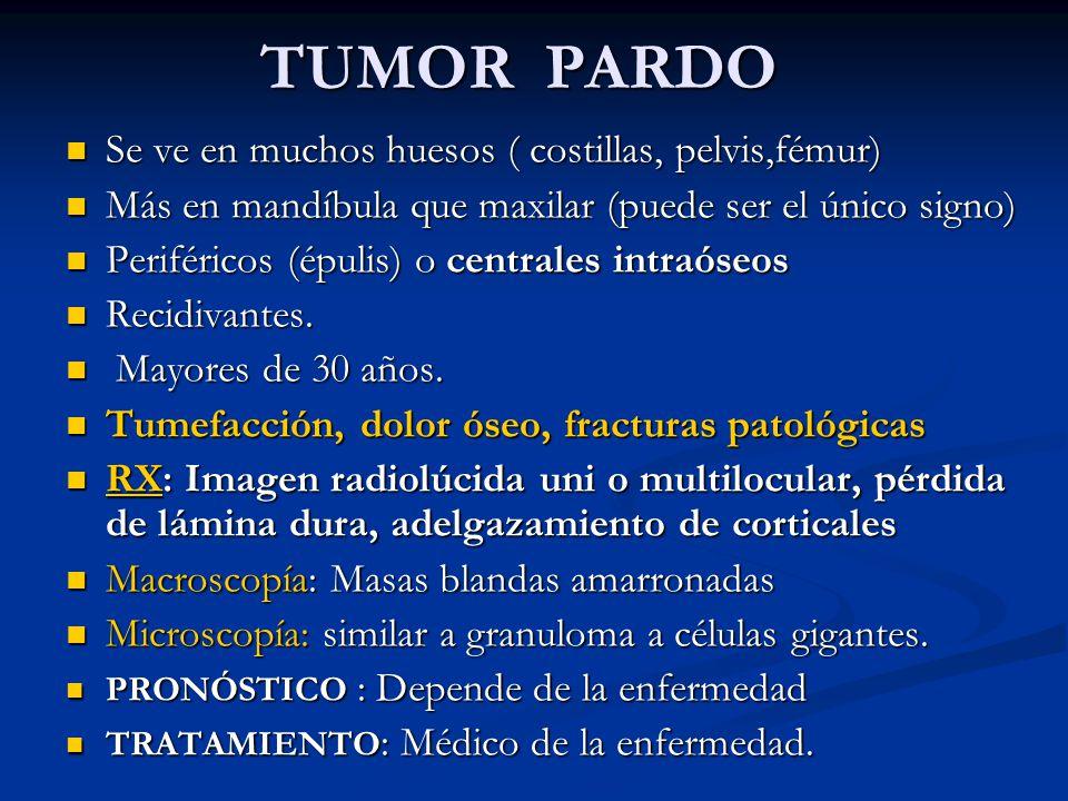 TUMOR PARDO Se ve en muchos huesos ( costillas, pelvis,fémur)