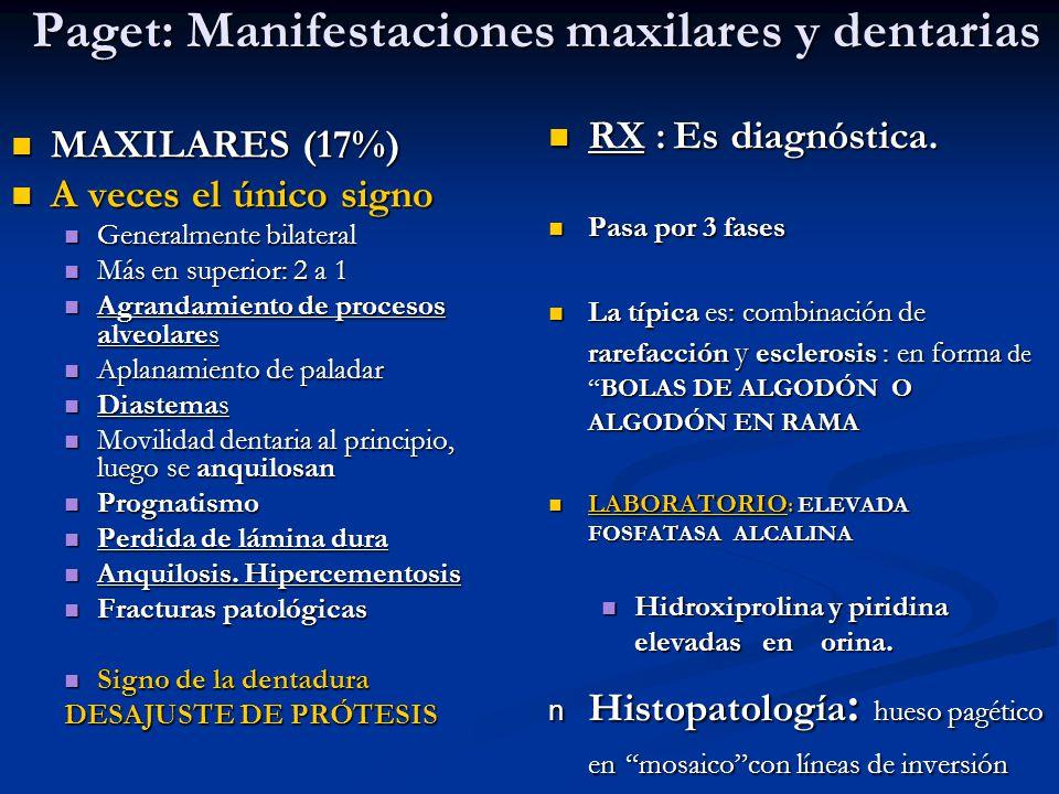 Paget: Manifestaciones maxilares y dentarias
