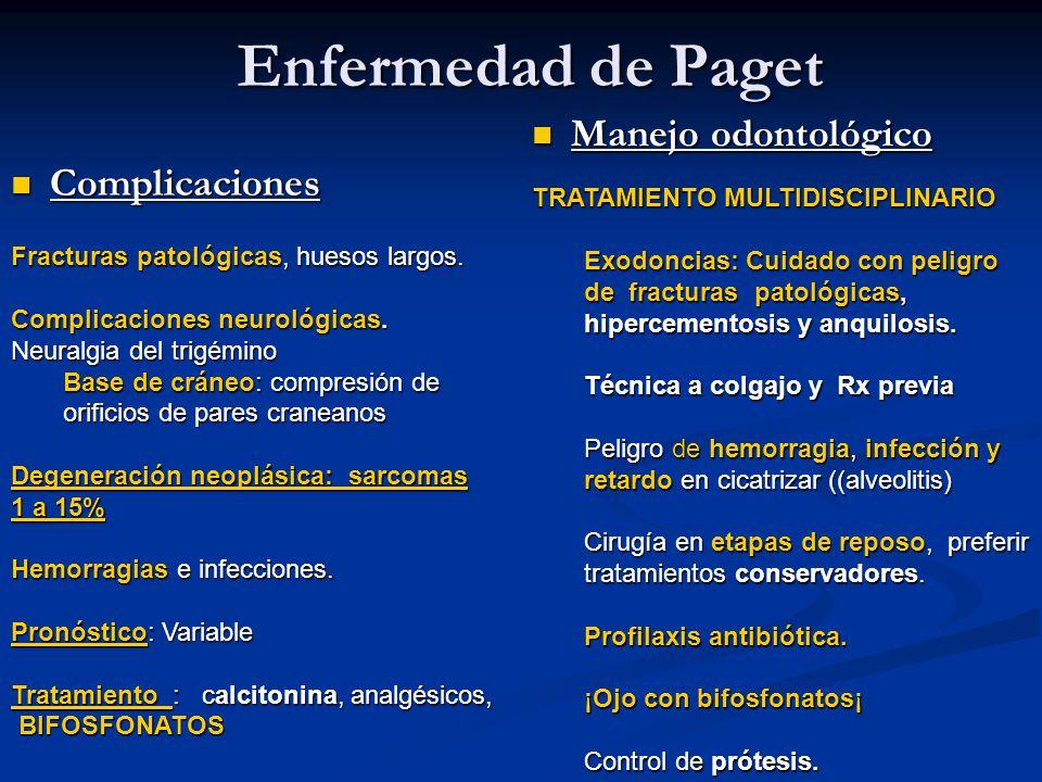 Enfermedad de Paget Manejo odontológico Complicaciones
