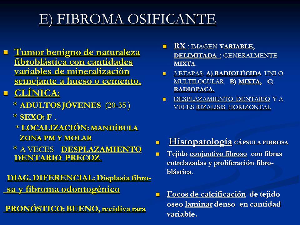 E) FIBROMA OSIFICANTE RX : IMAGEN VARIABLE, DELIMITADA : GENERALMENTE MIXTA. 3 ETAPAS: A) RADIOLÚCIDA UNI O MULTILOCULAR B) MIXTA, C) RADIOPACA.