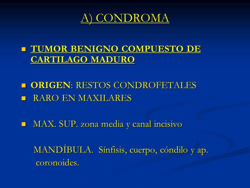 A) CONDROMA TUMOR BENIGNO COMPUESTO DE CARTILAGO MADURO