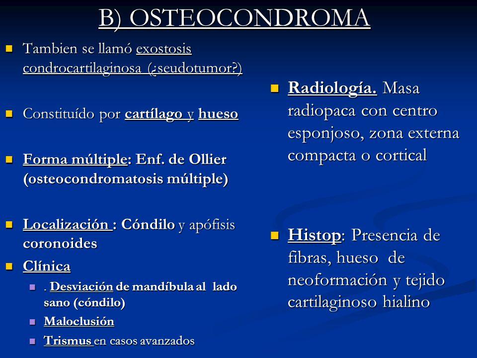 B) OSTEOCONDROMA Tambien se llamó exostosis condrocartilaginosa (¿seudotumor ) Constituído por cartílago y hueso.
