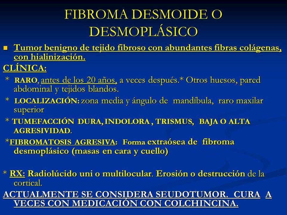 FIBROMA DESMOIDE O DESMOPLÁSICO