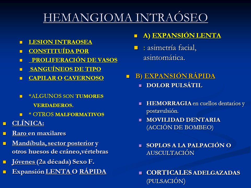 HEMANGIOMA INTRAÓSEO : asimetría facial, asintomática.