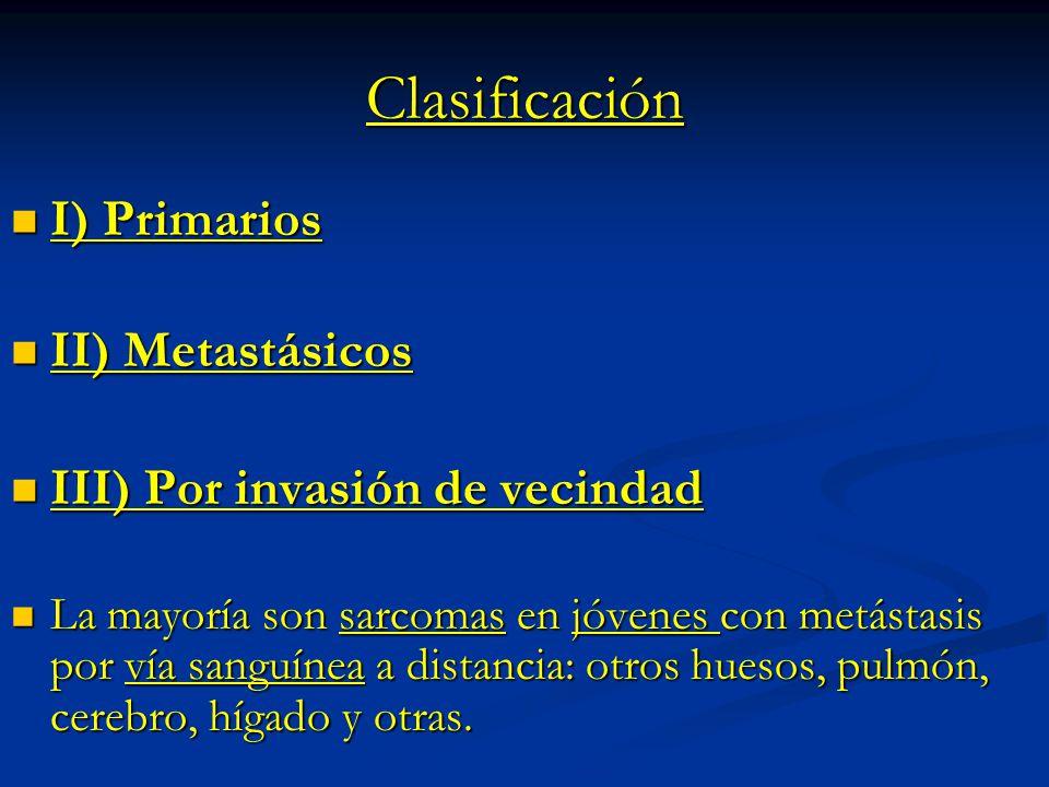 Clasificación I) Primarios II) Metastásicos