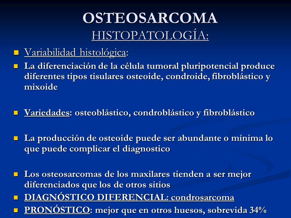 OSTEOSARCOMA HISTOPATOLOGÍA: