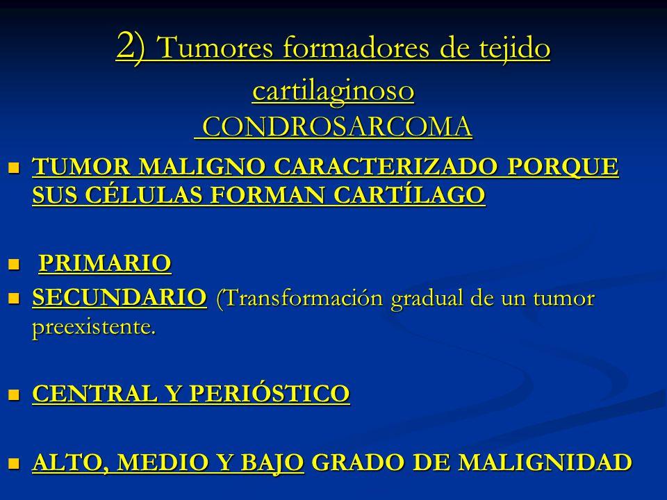 2) Tumores formadores de tejido cartilaginoso CONDROSARCOMA