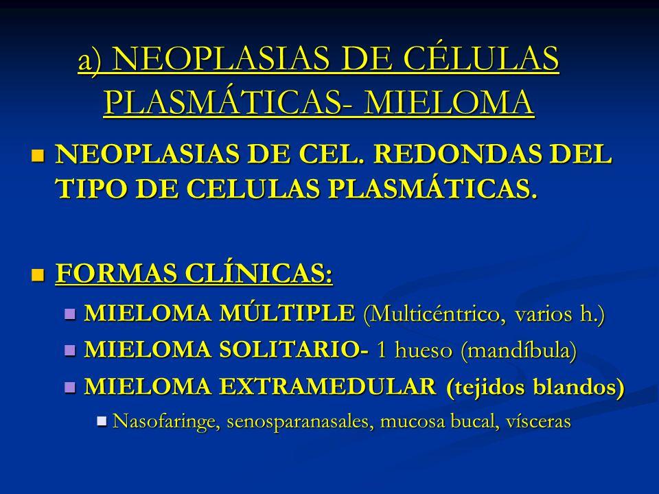 a) NEOPLASIAS DE CÉLULAS PLASMÁTICAS- MIELOMA