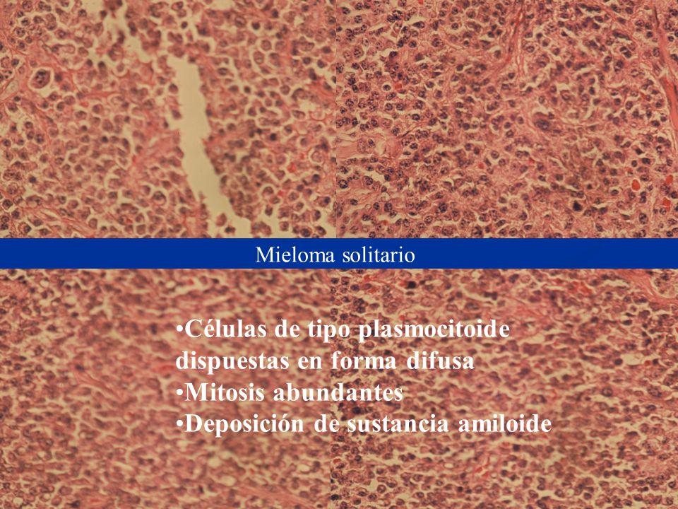Células de tipo plasmocitoide dispuestas en forma difusa