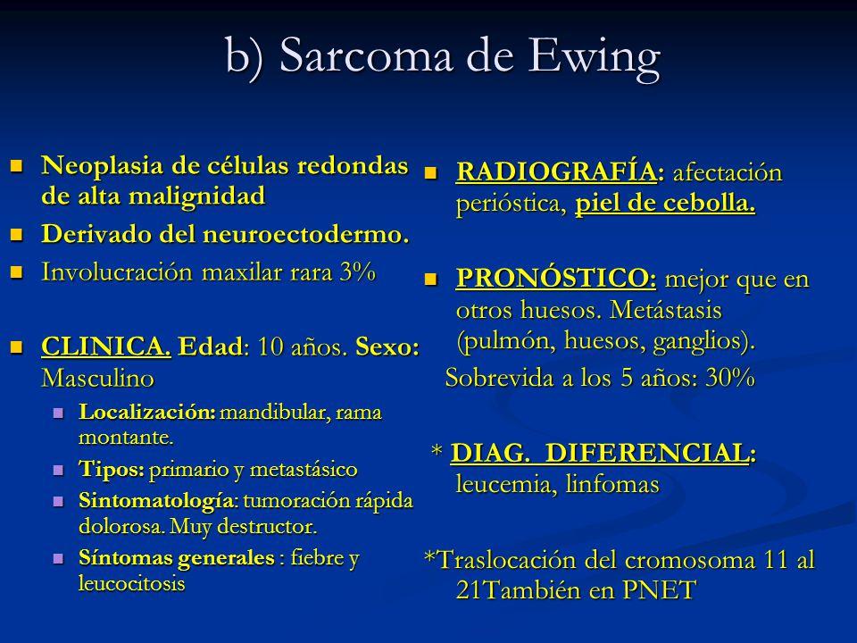 b) Sarcoma de Ewing Neoplasia de células redondas de alta malignidad