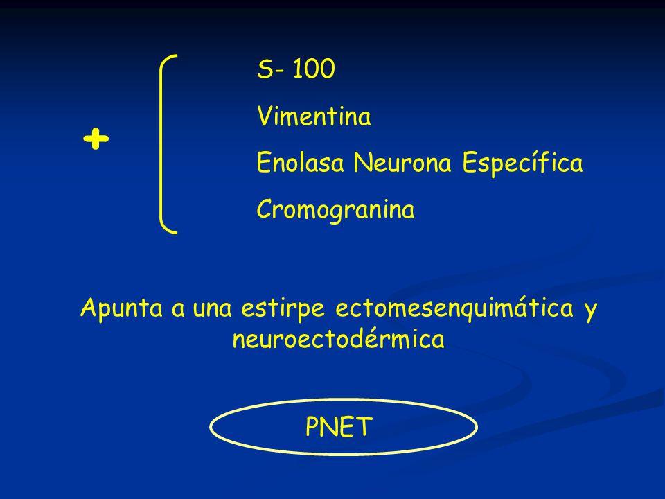 Apunta a una estirpe ectomesenquimática y neuroectodérmica