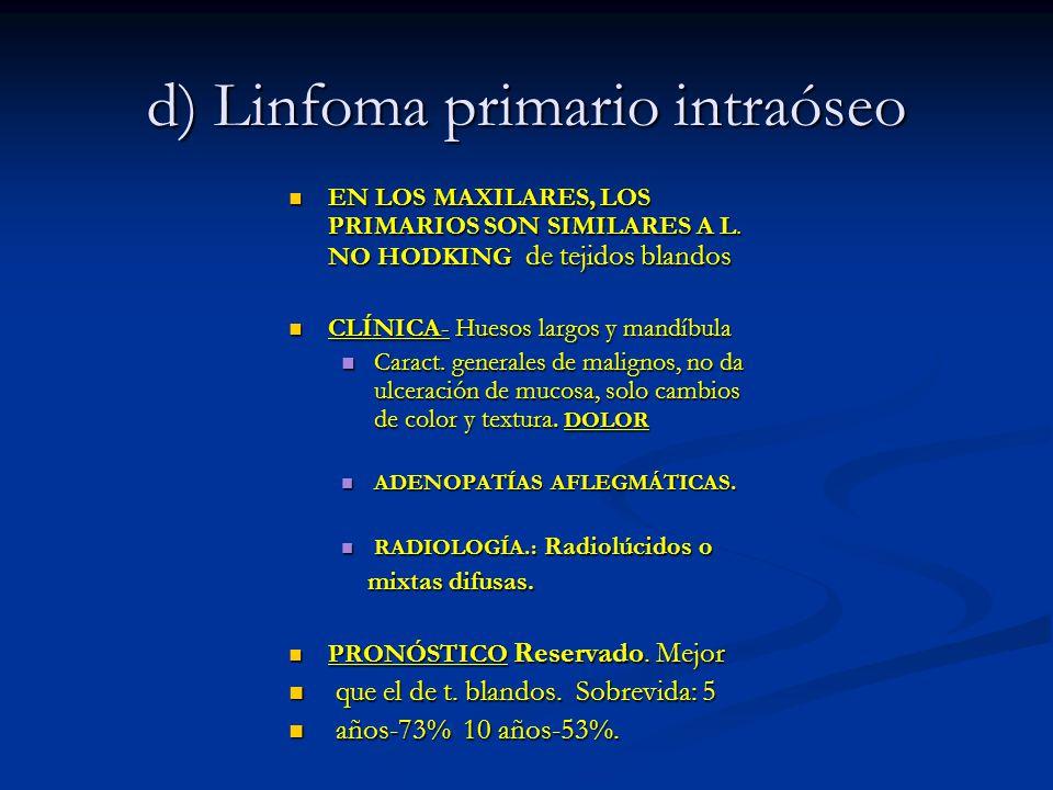 d) Linfoma primario intraóseo