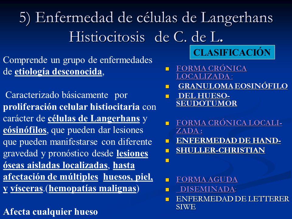 5) Enfermedad de células de Langerhans Histiocitosis de C. de L.