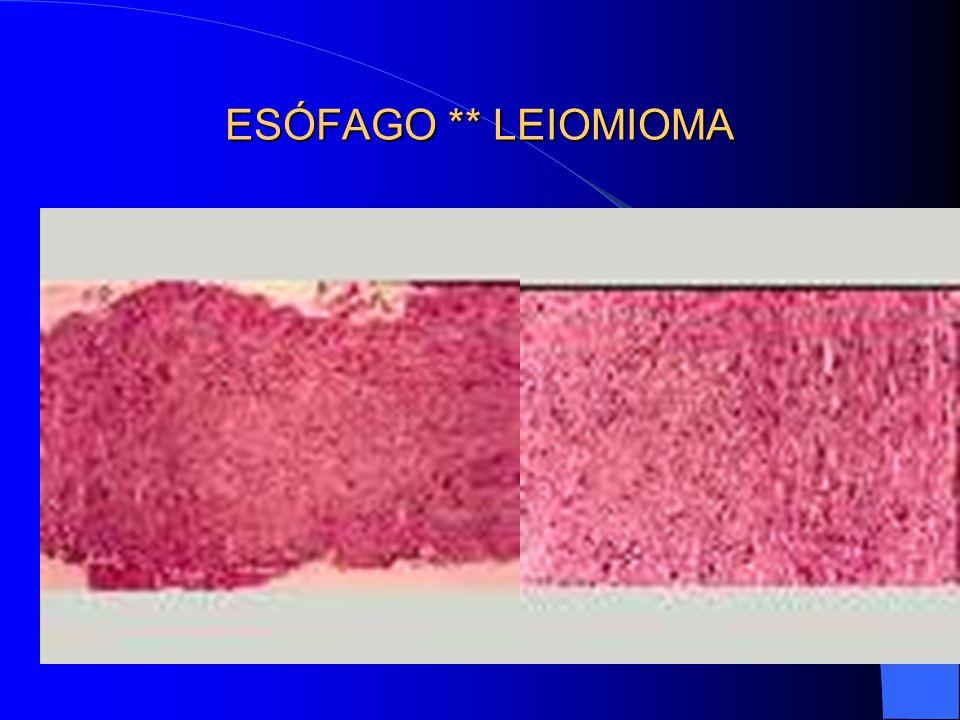 ESÓFAGO ** LEIOMIOMA