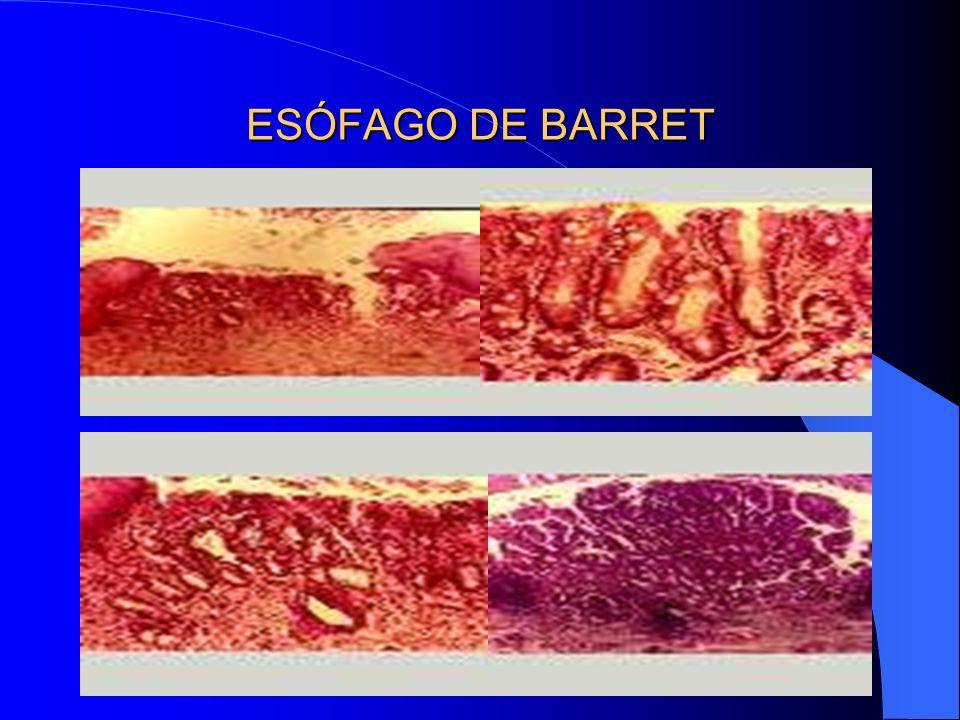 ESÓFAGO DE BARRET