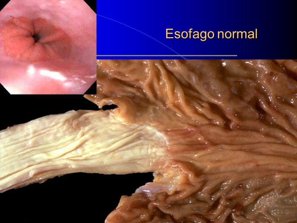 Esofago normal